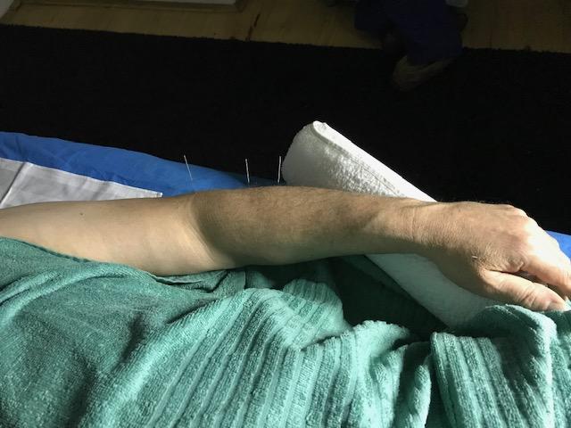 arm acupunctuur bij oudere man.